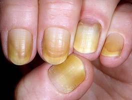 желтеют ногти на руках