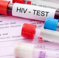 USB-устройство может определить ВИЧ в крови всего за 21 минуту