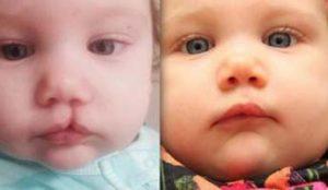 заячья губа до и после операции