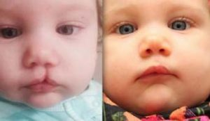 заячья губа у ребёнка фото