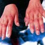 что делать при обморожении пальцев рук