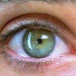 причины суженных зрачков