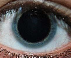 У ребенка часто болят глаз