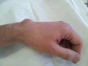 Гигрома на кисти руки лечение