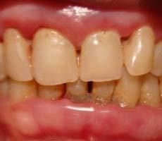 мягкий зубной налет