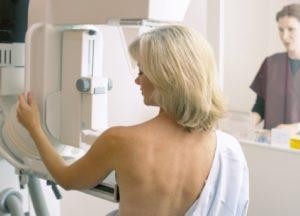Как удаляют аденому груди