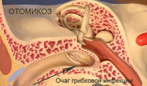 Болячки в ушах у человека лечение