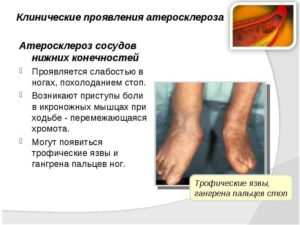 Атеросклероз нижних конечностей симптомы