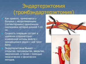 Атеросклероз сосудов ног лечение
