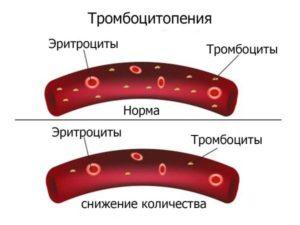 Сниженное количество тромбоцитов